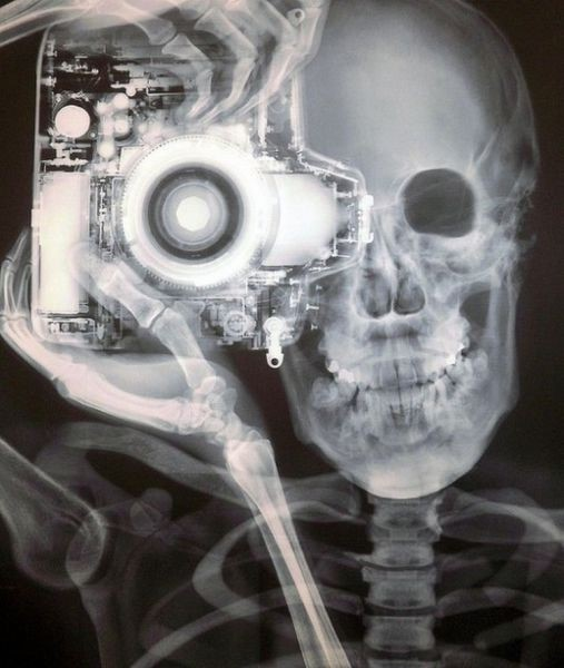 X-RAY PHOTOGRAPHY