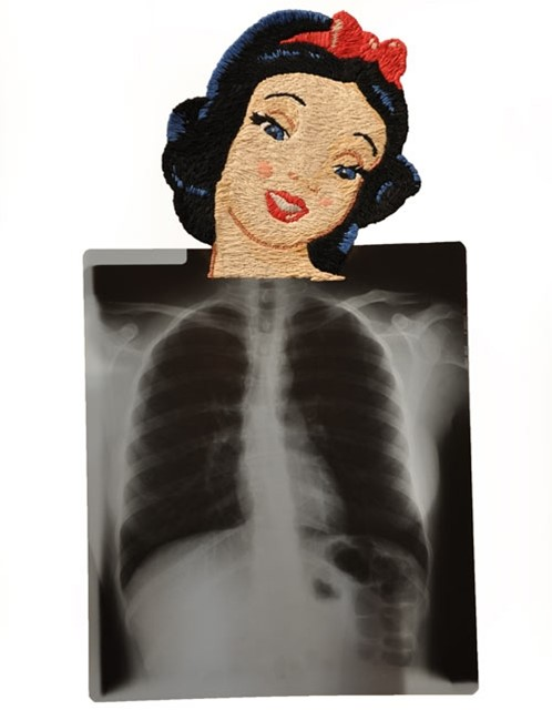 Embroidered X-Rays by Matthew Cox